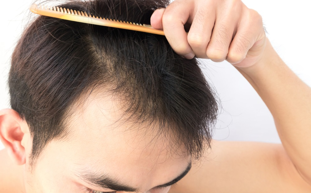 Tips to Fix Your Hair Fall Problem in A Hassle-Free Manner